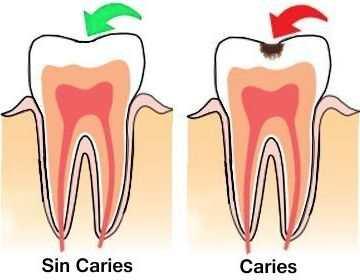 Porque los dientes sufren de caries y a qué se denomina caries