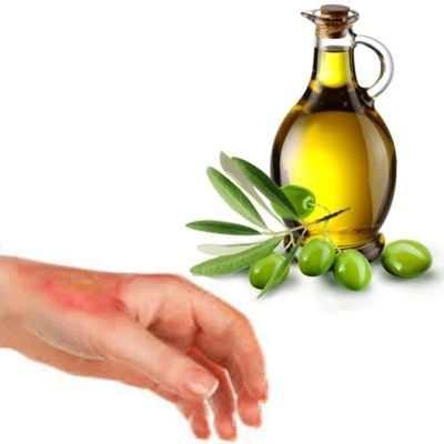 Aceite de oliva para las quemaduras del sol