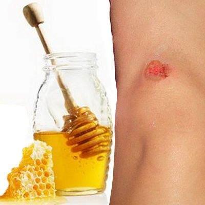 Miel para curar heridas