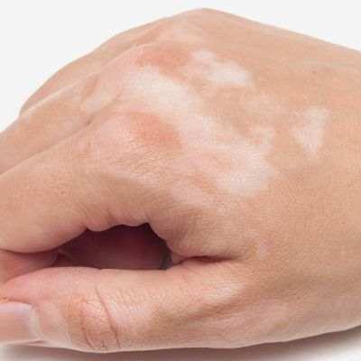 ¿En qué consiste la enfermedad de vitíligo?