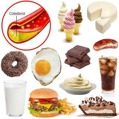 Alimentos no aptos para el colesterol alto