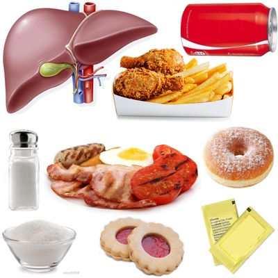 Los peores alimentos para el hígado