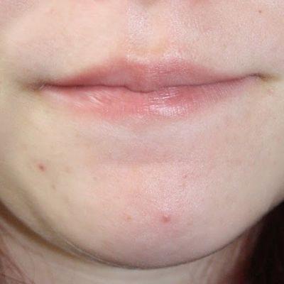 Agentes causadores del acné