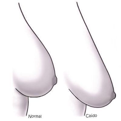 ¿Cómo hacer que los senos sean duros?