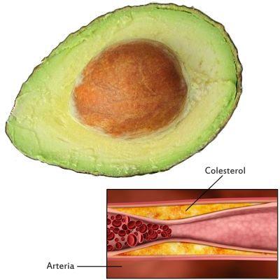 Porque el aguacate reduce el colesterol