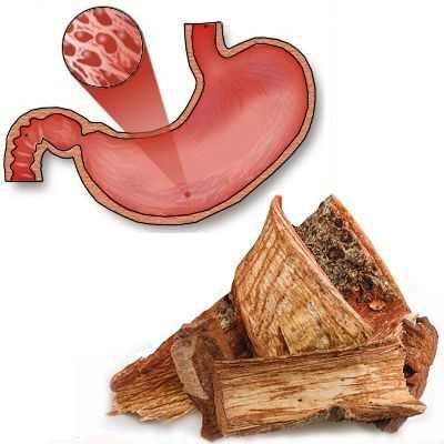 Sirve el cuachalalate para la gastritis