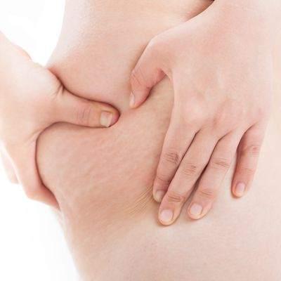 ¿A qué edad se puede tener celulitis?