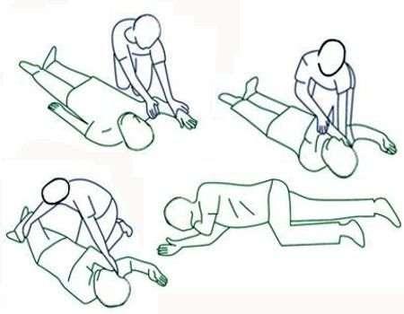 ¿Qué hacer en caso de epilepsia primeros auxilios?