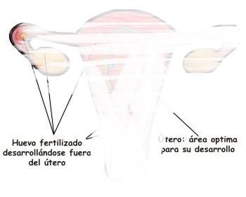 ¿Cuáles son las causas de tener un embarazo ectópico?