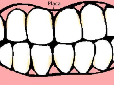 Composición de la placa dentobacteriana