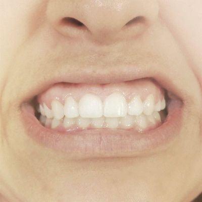 Apretar los dientes o bruxismo
