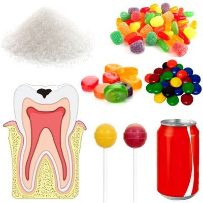 Relación entre azúcar y caries