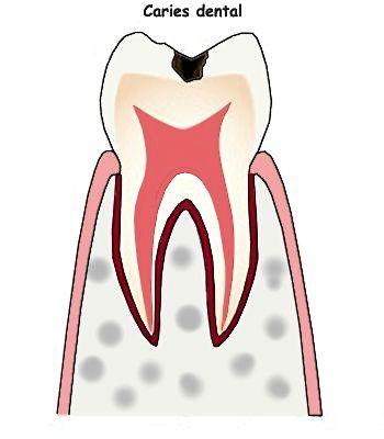 ¿Cómo saber si tengo caries entre los dientes?
