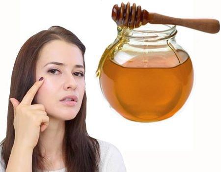 ¿Cómo aplicar miel en la cara para el acné?