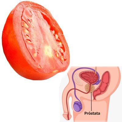 ¿Es bueno el tomate para la próstata?