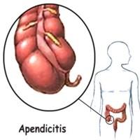 Porque aparece la enfermedad apendicitis