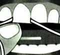 Porque debemos usar el hilo dental