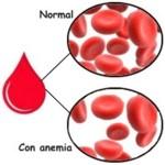 ¿Alguien se puede morir de anemia?