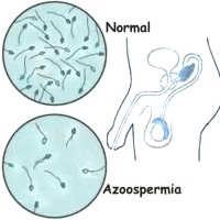 ¿Qué significa la palabra azoospermia?
