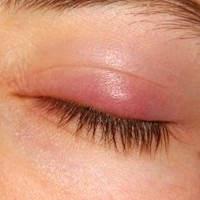Enfermedad del ojo chalazión en oftalmología