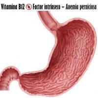 Efectos de la anemia perniciosa