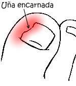Como no tener uñas encarnadas