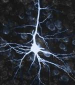 Porque son importantes las neuronas para el ser humano