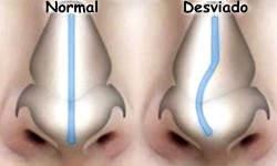 ¿Cómo puedo saber si tengo el tabique nasal desviado?