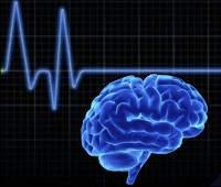 ¿Qué pasa cuando el cerebro deja de funcionar?