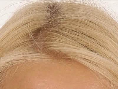 ¿Es malo o peligroso tener la cabeza con caspa?