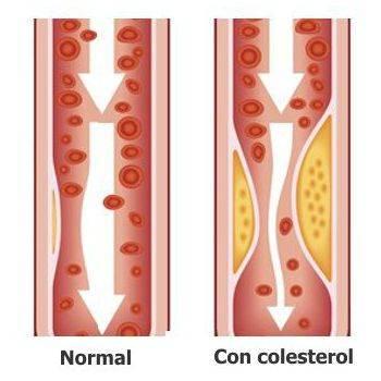 ¿De qué manera podemos controlar los niveles preocupantes de colesterol?