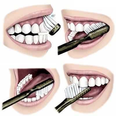 ¿Cuáles son los pasos para un buen cepillado de dientes?