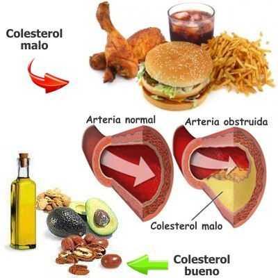 ¿Cuáles son las dos clases de colesterol que hay?