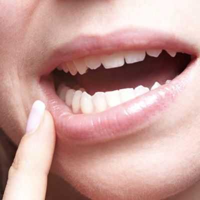 Como tratar los labios resecos y partidos