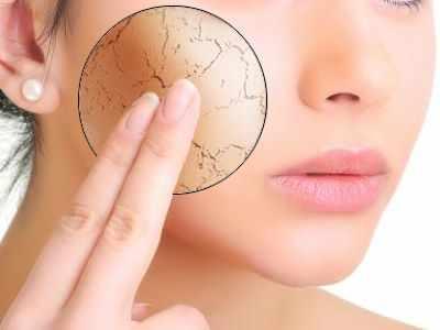 Causas de sequedad en la piel