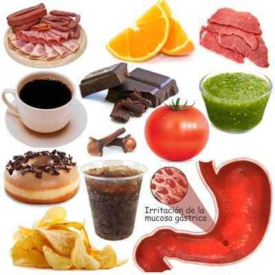¿Qué cosas no puedo comer si tengo gastritis? ¿qué cosas