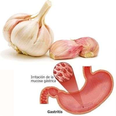 Beneficios y propiedades del ajo para la gastritis
