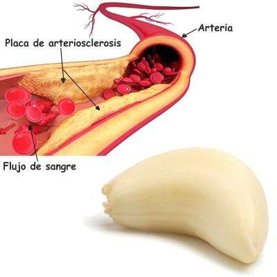 Beneficios del ajo para la arteriosclerosis