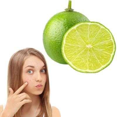 Beneficios y propiedades del limón para las espinillas