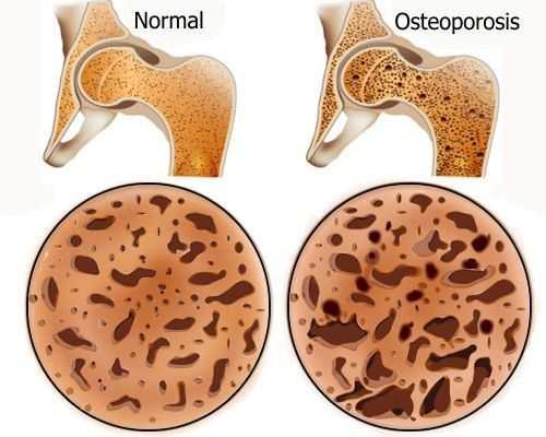 Porque se enferma de osteoporosis ¿Qué cosas aumentan el riesgo de padecer osteoporosis?