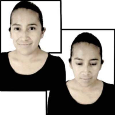 ¿Es malo tener trastorno bipolar? ¿Qué significa cuando una persona dice que es bipolar?